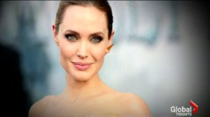 Doctor discusses Angelina Jolie's surgery