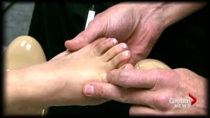 Nutrition: Reducing the risk for gout