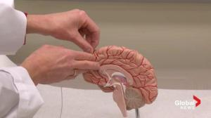 Deep brain stimulation research