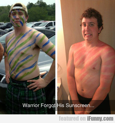 Warrior Forgot His Sunscreen...