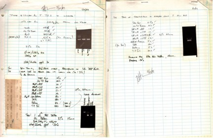 An excerpt from Robert Malone's lab notebooks, describing the 1989 synthesis of mRNA for injection into mice