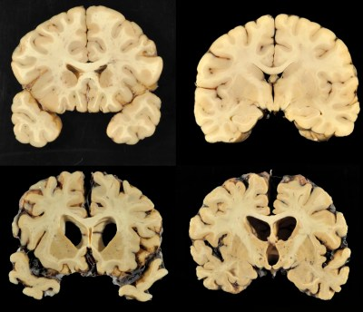 CTE Study Finds Evidence of Brain Disease in 110 Out of 111 Former NFL Players - NBC News