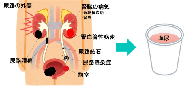 cause of blood urine