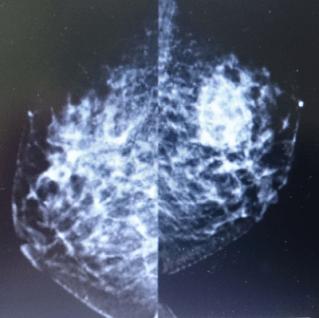 mammography1