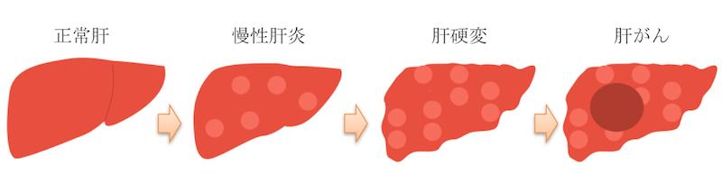 liver LC HCC