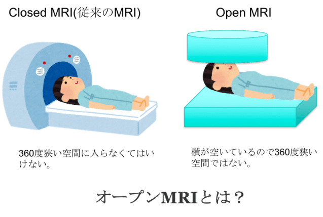 open MRI figure