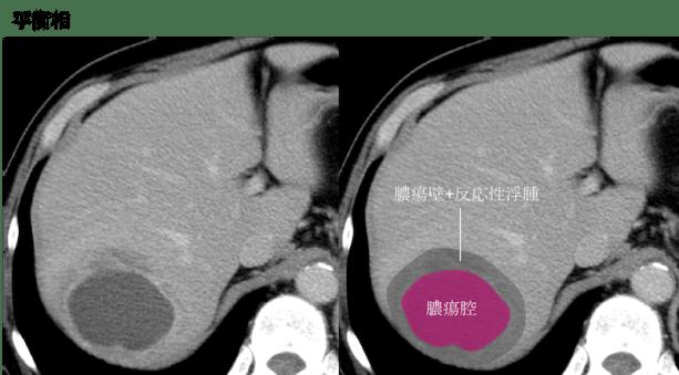 hepatic abscess CT findings3