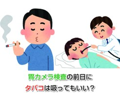 Gastroscopy Eye-catching image