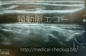cervical echo doc2