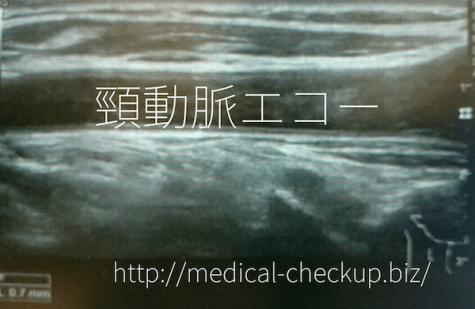 cervical echo