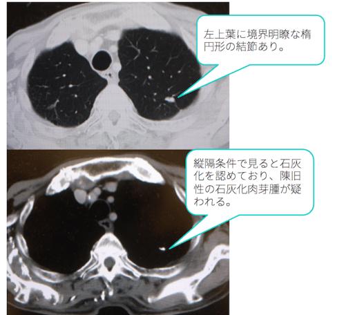lung-nodule-calc-ct-findings2