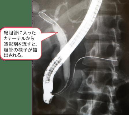 endoscopic-retrograde-cholangiopancreatography1