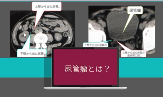 ureterocele-eye