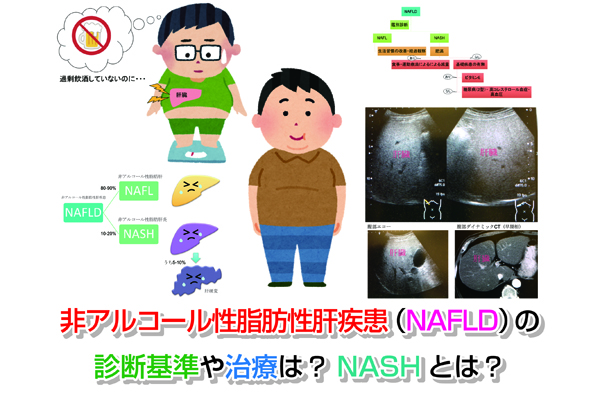 NAFLD Eye-catching image