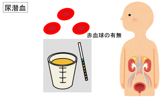 urine occult blood reaction