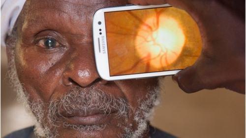 Peek realizando exame de funde de olho para verificar o estado da retina e nervo óptico