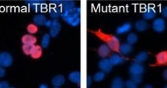 Descoberta causa genética do autismo