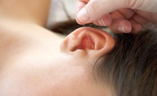 acupuntura-auricular