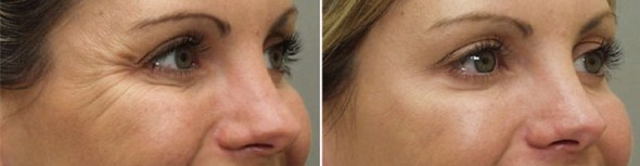 Botox Anti-Wrinkle Injections Results