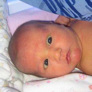 Cross Eyed Baby