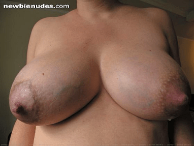 a pair of milk-engorged breasts showing off a most attractive pair of teats