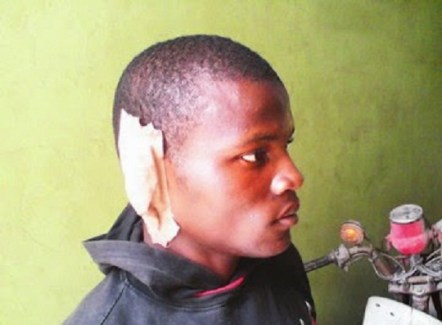 Father-Bits-Off-Son's-Ear-For-Trying-To-Stop-Him-From-Beating-His-Mother