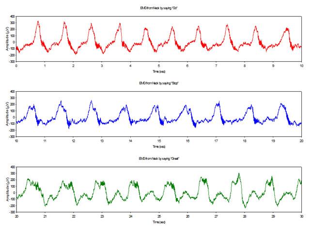 Различение словесных команд по ЭМГ сигналам