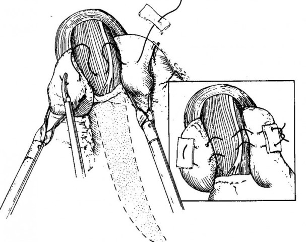 Λαπαροσκοπική αποκατάσταση διαφραγματοκήλης