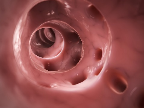 3d rendered illustration of diverticulitis