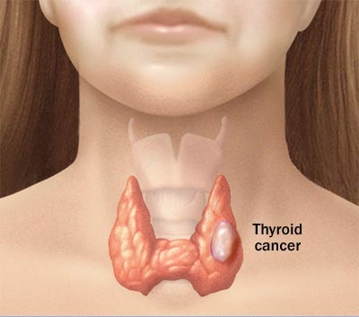 _thyroid_cancer