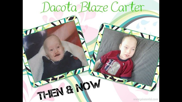 dacota then now