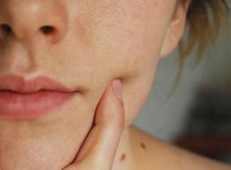 face mole