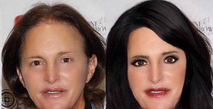 Bruce Jenner ook bil implantaten?