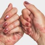 Psoriasis: cómo tratarla naturalmente