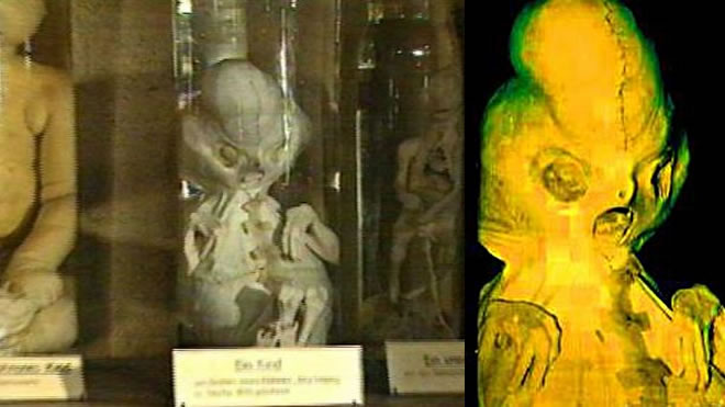 extraterrestre-alienigena-de-Waldenburg-feto-hibrido El ser de Waldenburg ¿Primer experimento de hibridación humana?