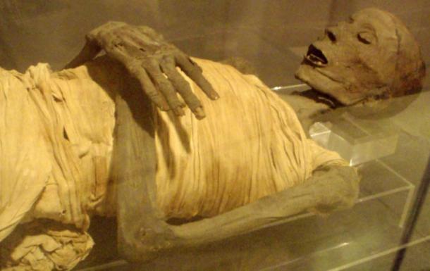 mummified-remains-Usermontu El Misterio Médico De Usermontu: ¿Por Qué El Descubrimiento De Un Tornillo En Una Rótula De 2600 Años Dejó Perplejos A Los Expertos?