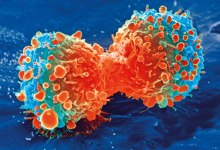 Cancer cells programmed back to normal by US scientists