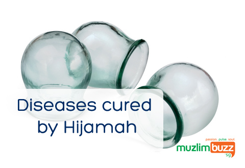 Diseases Cured by Hijama