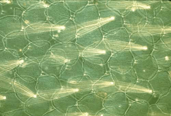 PHOTO: Butterfly wing scales under a microscope. Photo credit: Thomas Eisner.