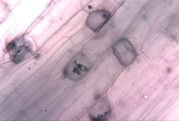 PHOTO: Microscopic image of beneficial orchid fungi.