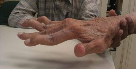 Swan_neck_deformity_in_a_65_year_old_Rheumatoid_Arthritis_patient-_2014-05-27_01-49
