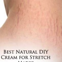 A Natural DIY Cream to Prevent Stretch Marks