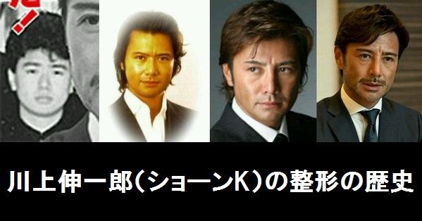 shonk_seikei