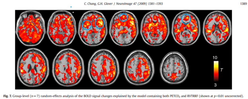 Insula and Anterior Cingulate: the 'everything' network or systemic neurovascular confound? (1/3)