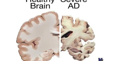 alzheimers-disease-brain-vs-healthy-brain