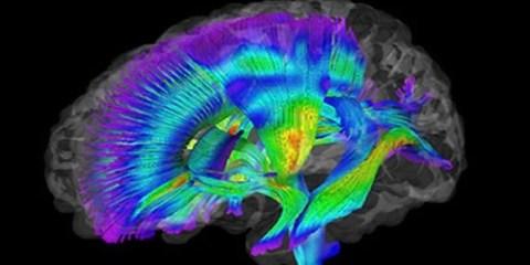 autism-infant-dti-brain-scan
