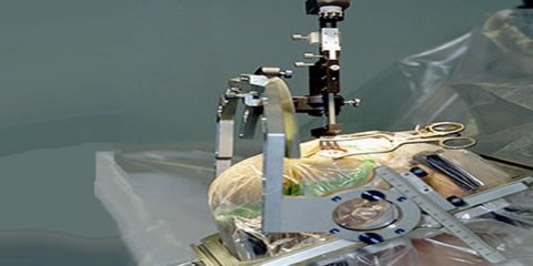 The image shows a patient undergoing surgery for a deep brain stimulation implant.