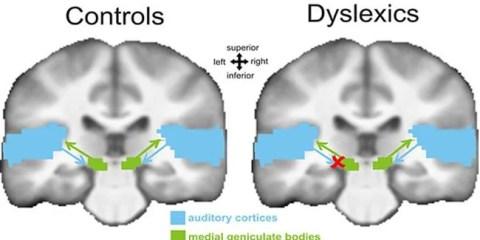 dyslexia-medial-geniculate-body