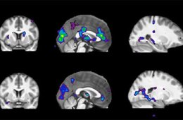 fmri-quit-smoking-study