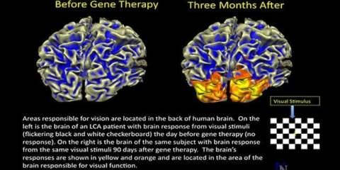 gene-therapy-lca-brain